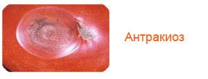 Антракиоз